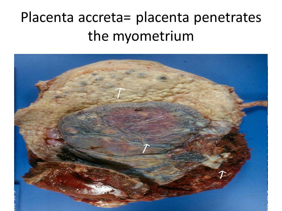 Placenta accreta= placenta penetrates the myometrium