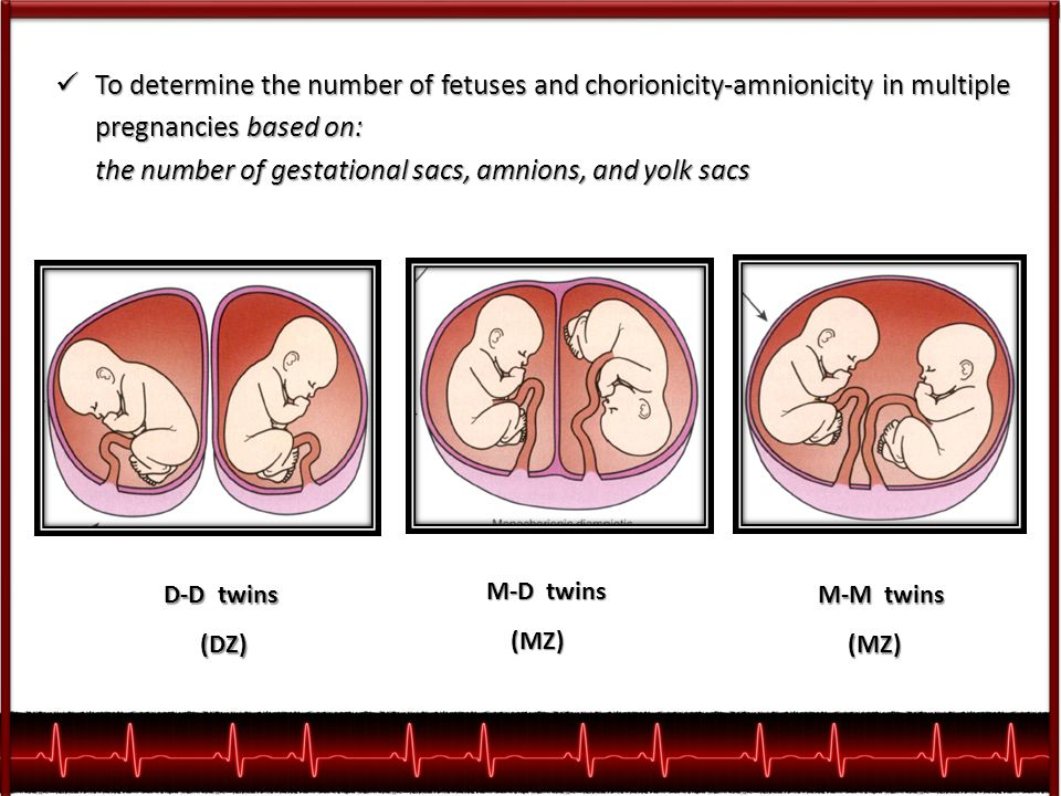 To determine the number of fetuses and chorionicity-amnionicity in multiple pregnancies based on: To determine the number of fetuses and chorionicity-amnionicity in multiple pregnancies based on: the number of gestational sacs, amnions, and yolk sacs the number of gestational sacs, amnions, and yolk sacs D-D twins (DZ) (DZ) M-D twins (MZ) (MZ) M-M twins (MZ) (MZ)