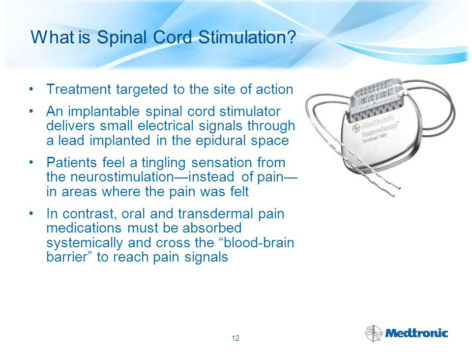 Spinal Cord Stimulation Trial – Patients can trial the therapy Temporary system Only component implanted is lead Patient uses system 3-10 days – Successful trial can be followed by implant Implantation of neurostimulator, lead(s), and extensions(s) if trial effective 13