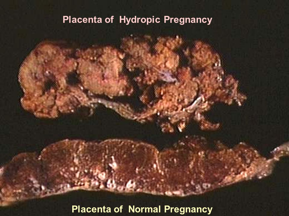 Placenta of Hydropic Pregnancy Placenta of Normal Pregnancy