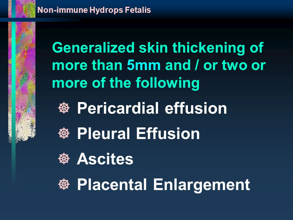 Generalized skin thickening of more than 5mm and / or two or more of the following Non-immune Hydrops Fetalis ]Pericardial effusion ]Pleural Effusion ]Ascites ]Placental Enlargement