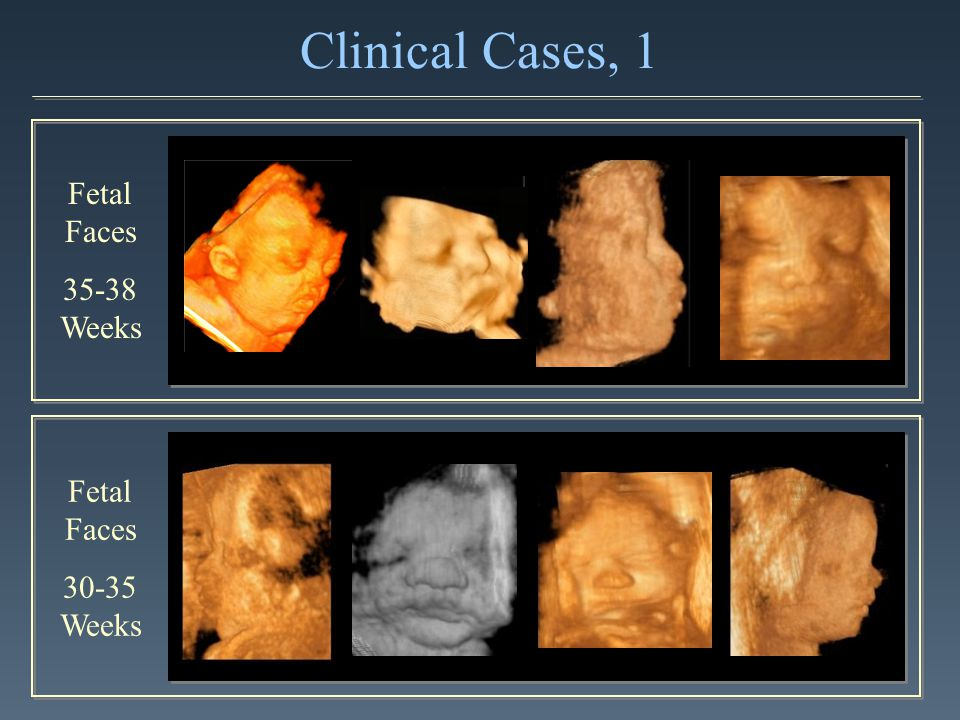 Clinical Cases, 1 Fetal Faces 35-38 Weeks Fetal Faces 30-35 Weeks