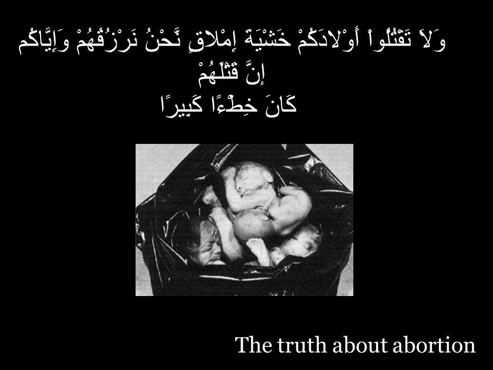 The truth about abortion وَلاَ تَقْتُلُواْ أَوْلادَكُمْ خَشْيَةَ إِمْلاقٍ نَّحْنُ نَرْزُقُهُمْ وَإِيَّاكُم إنَّ قَتْلَهُمْ كَانَ خِطْءًا كَبِيرًا