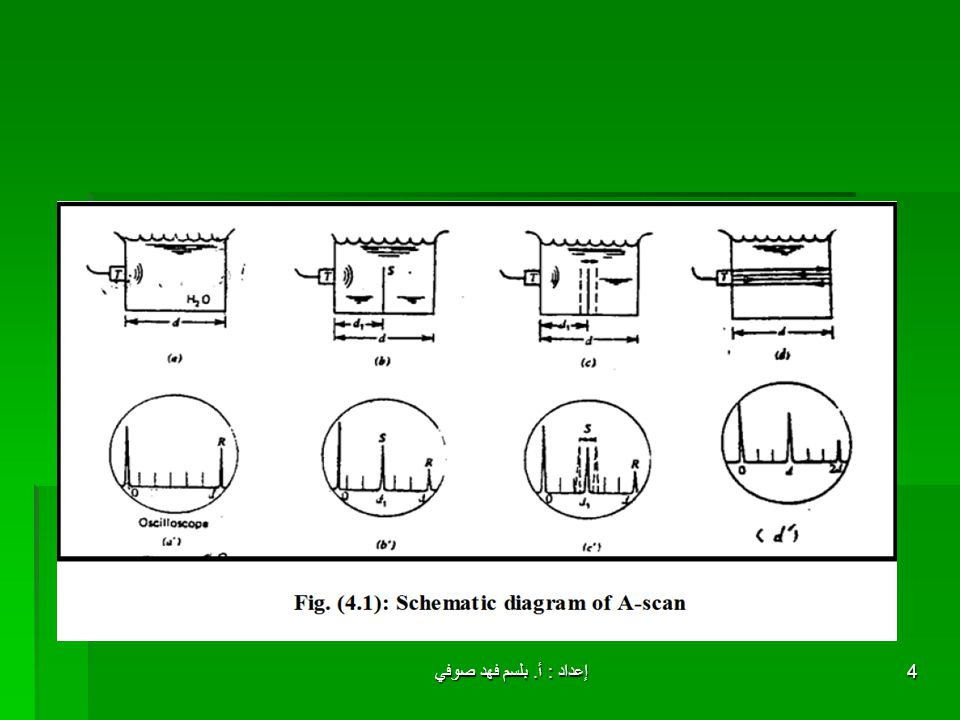 إعداد : أ.بلسم فهد صوفي15 Medical Application of M – scan : .