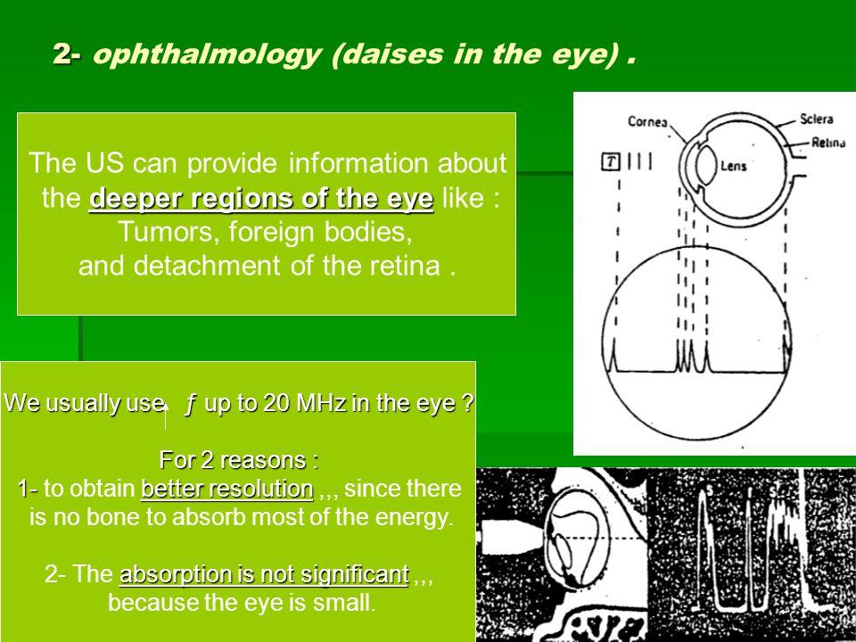 إعداد : أ. بلسم فهد صوفي9 2- 2- ophthalmology (daises in the eye).