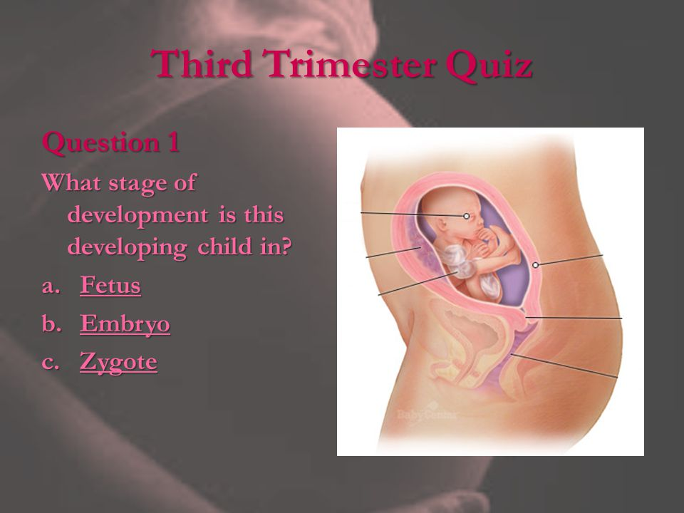 Third Trimester Quiz Question 1 What stage of development is this developing child in.