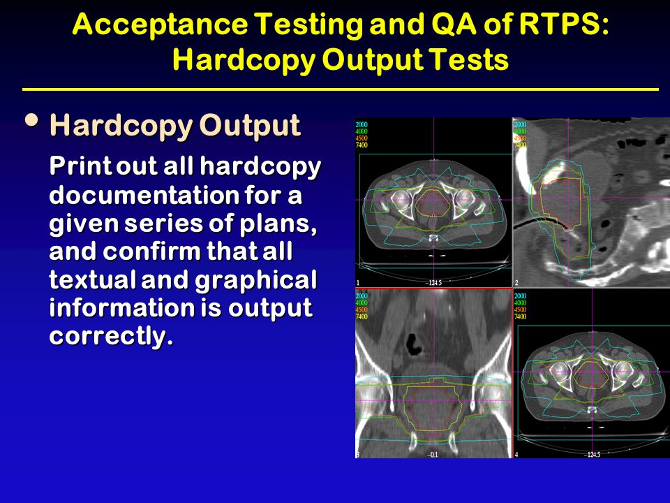 Acceptance Testing and QA of RTPS: Hardcopy Output Tests Hardcopy Output Hardcopy Output Print out all hardcopy documentation for a given series of pl
