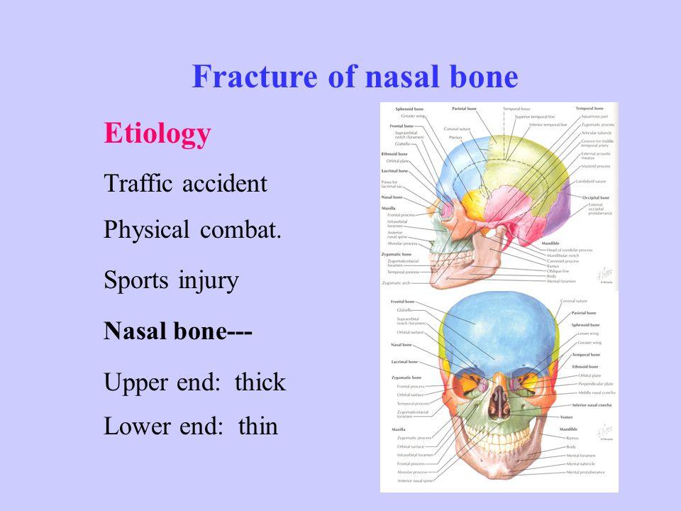 Symptoms & Signs : Pain, epistaxis, nasal deformity or deviation, bruising.