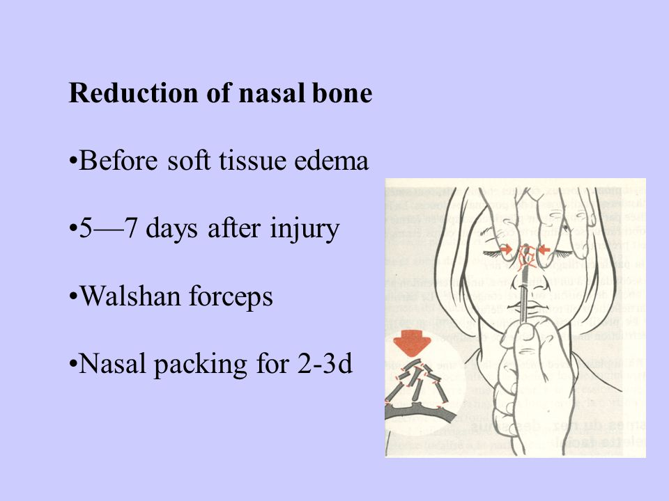Reduction of nasal bone Before soft tissue edema 5—7 days after injury Walshan forceps Nasal packing for 2-3d