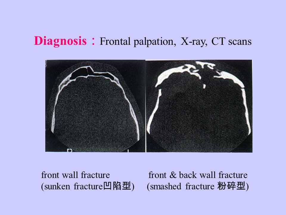 Cerebrospinal fluid rhinorrhea (CSF) Etiology : Traumatic: Iatrogenic, and external trauma.