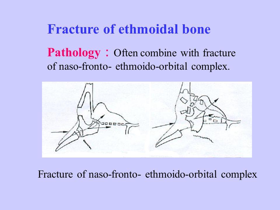 Extracranial approach : nasal external approach nasal endoscopic surgery