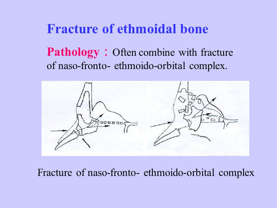 Symptoms & Sign : Nasal obstruction, rhinorrhea, hypertrophied inferior turbinate Treatment : 1 、 Pathogenic treatment 2 、 Local treatment