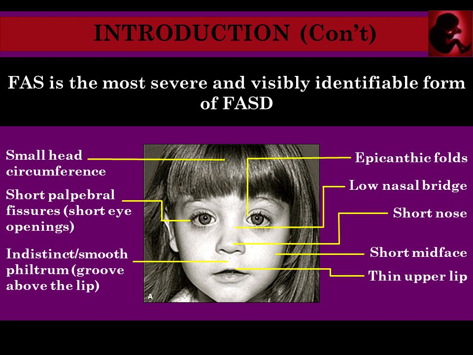 INTRODUCTION (Con't) FAS is the most severe and visibly identifiable form of FASD Small head circumference Short palpebral fissures (short eye openings) Indistinct/smooth philtrum (groove above the lip) Epicanthic folds Low nasal bridge Short nose Short midface Thin upper lip