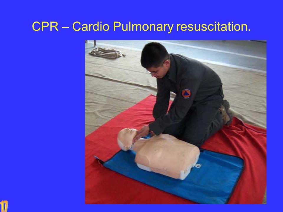 CPR – Cardio Pulmonary resuscitation.