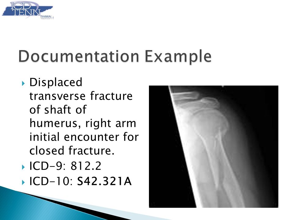  Displaced transverse fracture of shaft of humerus, right arm initial encounter for closed fracture.