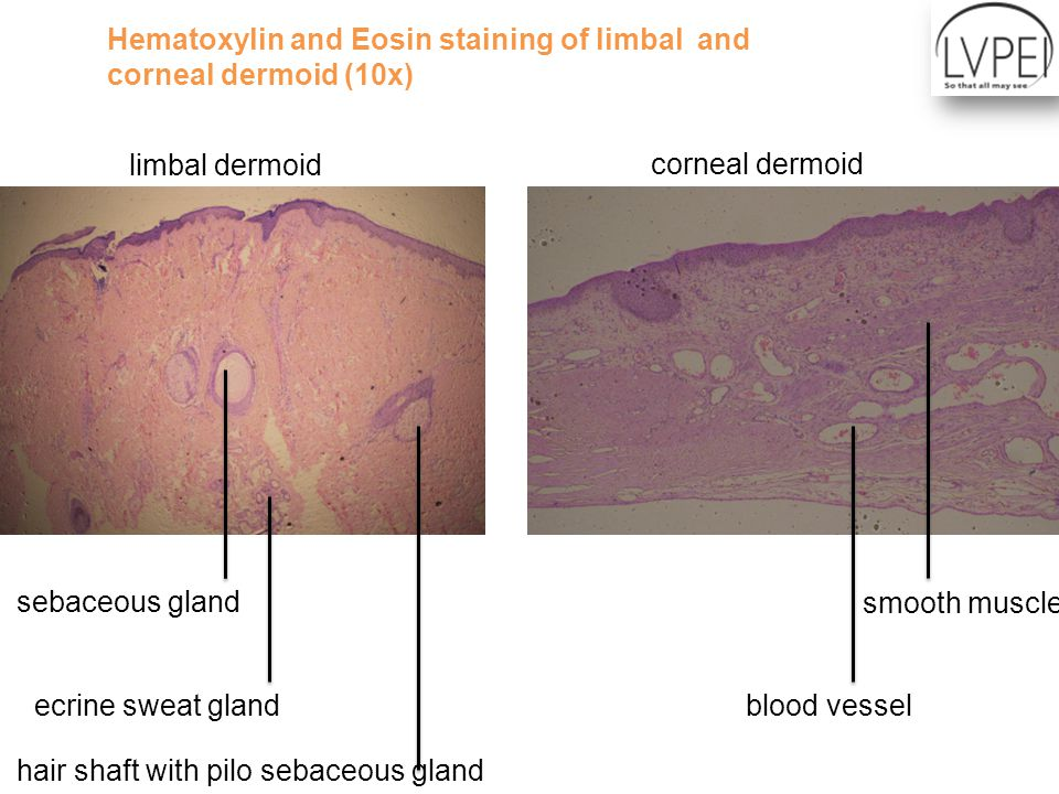 Hematoxylin and Eosin staining of limbal and corneal dermoid (10x) limbal dermoid corneal dermoid smooth muscle blood vessel sebaceous gland ecrine sweat gland hair shaft with pilo sebaceous gland
