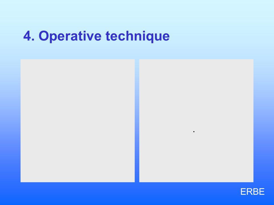 4. Operative technique.. ERBE