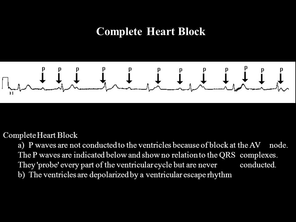 Complete Heart Block a) P waves are not conducted to the ventricles because of block at the AV node. The P waves are indicated below and show no relat