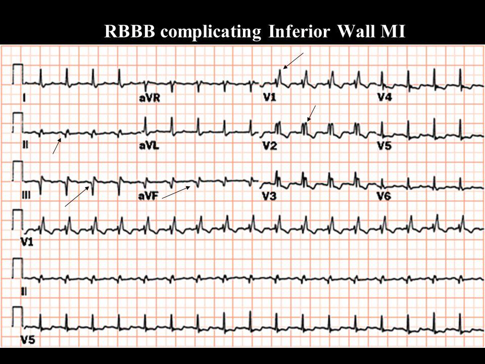 RBBB complicating Inferior Wall MI