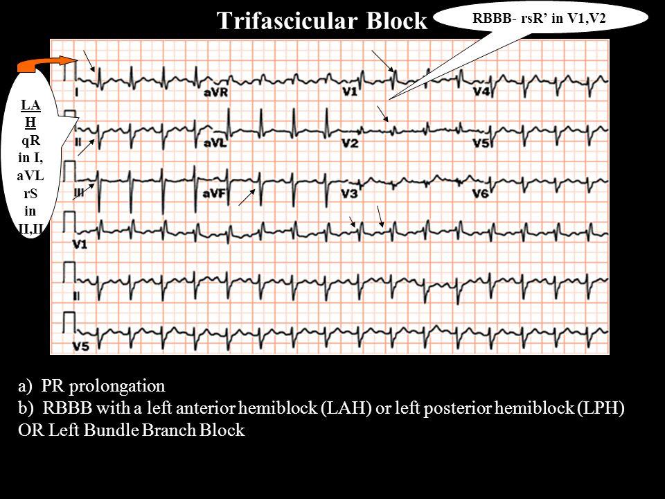 a) PR prolongation b) RBBB with a left anterior hemiblock (LAH) or left posterior hemiblock (LPH) OR Left Bundle Branch Block LA H qR in I, aVL rS in