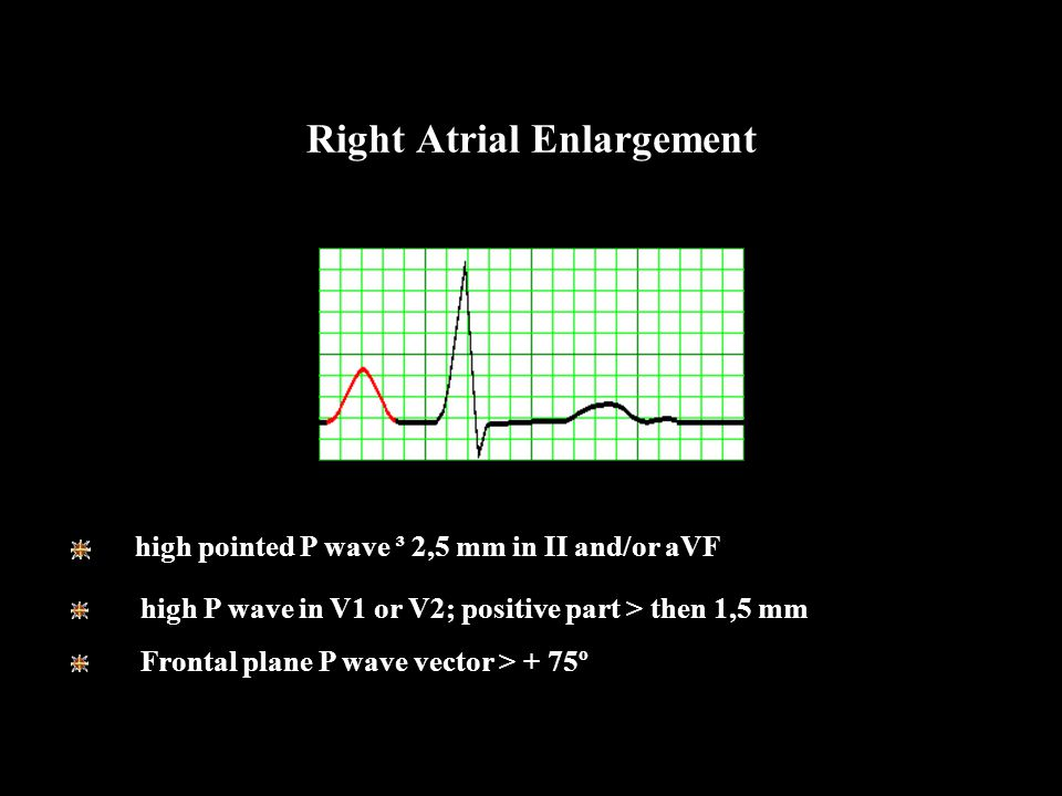 Right Atrial Enlargement high pointed P wave ³ 2,5 mm in II and/or aVF high P wave in V1 or V2; positive part > then 1,5 mm Frontal plane P wave vecto