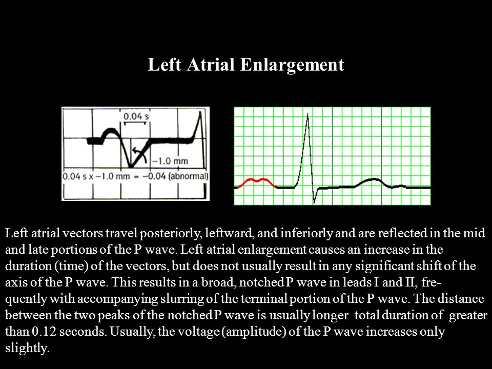 Left Atrial Enlargement Left atrial vectors travel posteriorly, leftward, and inferiorly and are reflected in the mid and late portions of the P wave.