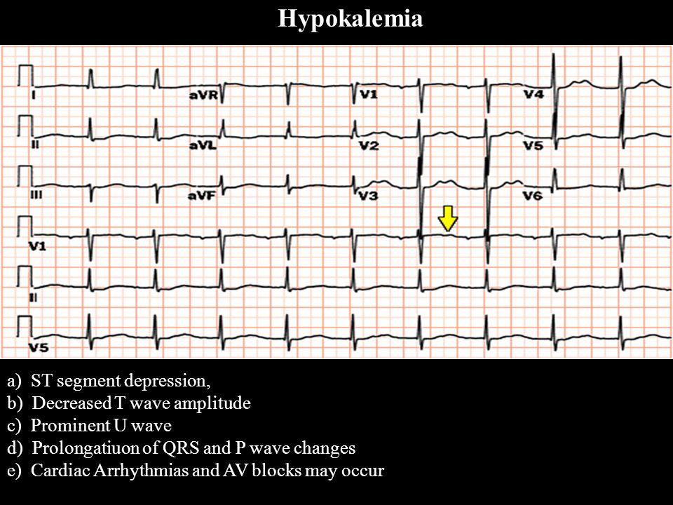 a) ST segment depression, b) Decreased T wave amplitude c) Prominent U wave d) Prolongatiuon of QRS and P wave changes e) Cardiac Arrhythmias and AV b