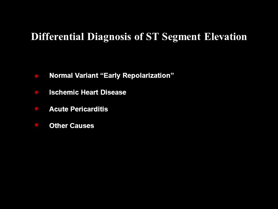 """Normal Variant """"Early Repolarization"""" Ischemic Heart Disease Acute Pericarditis Other Causes Differential Diagnosis of ST Segment Elevation"""