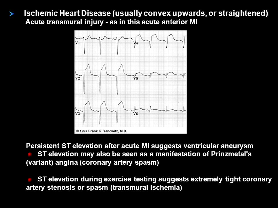 Ischemic Heart Disease (usually convex upwards, or straightened) Acute transmural injury - as in this acute anterior MI Persistent ST elevation after