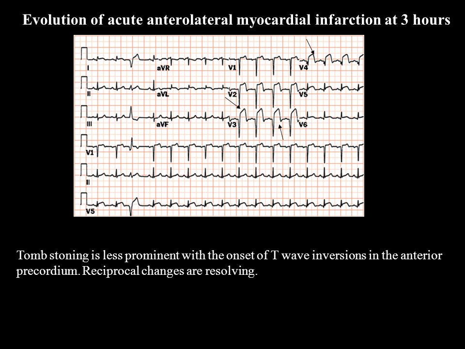 Tomb stoning is less prominent with the onset of T wave inversions in the anterior precordium. Reciprocal changes are resolving. Evolution of acute an