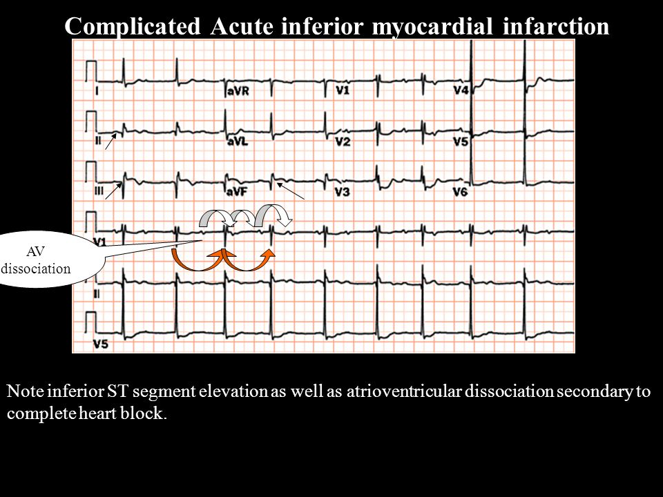 Note inferior ST segment elevation as well as atrioventricular dissociation secondary to complete heart block. AV dissociation Complicated Acute infer