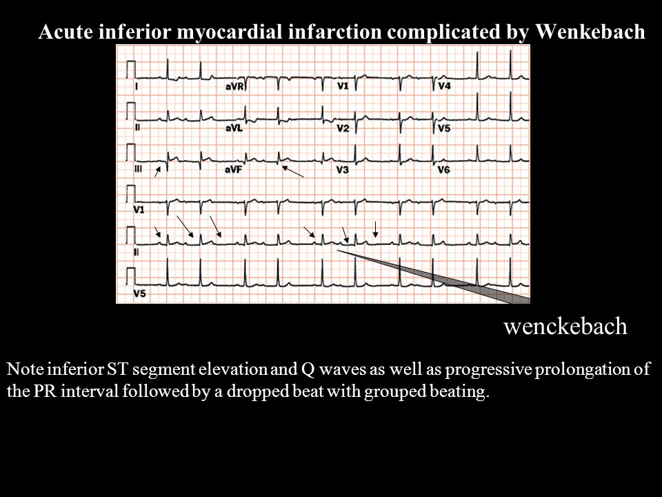Note inferior ST segment elevation and Q waves as well as progressive prolongation of the PR interval followed by a dropped beat with grouped beating.