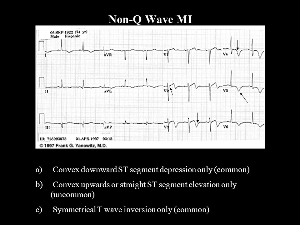 a) Convex downward ST segment depression only (common) b) Convex upwards or straight ST segment elevation only (uncommon) c) Symmetrical T wave invers