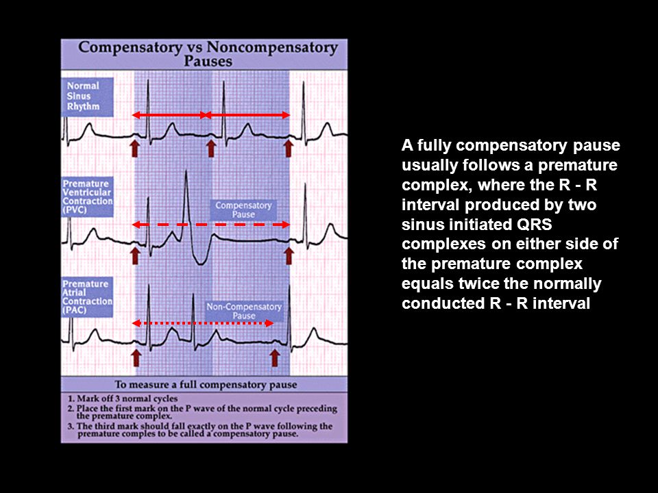 A fully compensatory pause usually follows a premature complex, where the R - R interval produced by two sinus initiated QRS complexes on either side
