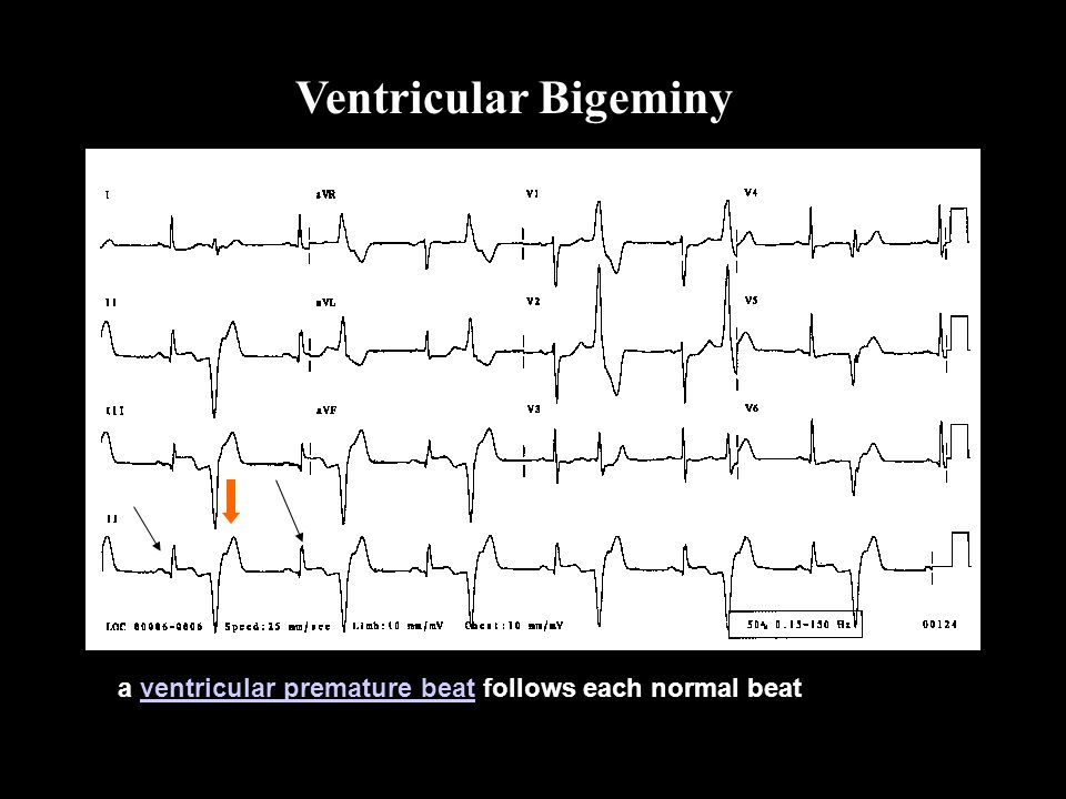 Ventricular Bigeminy a ventricular premature beat follows each normal beatventricular premature beat Bi ge mi ny