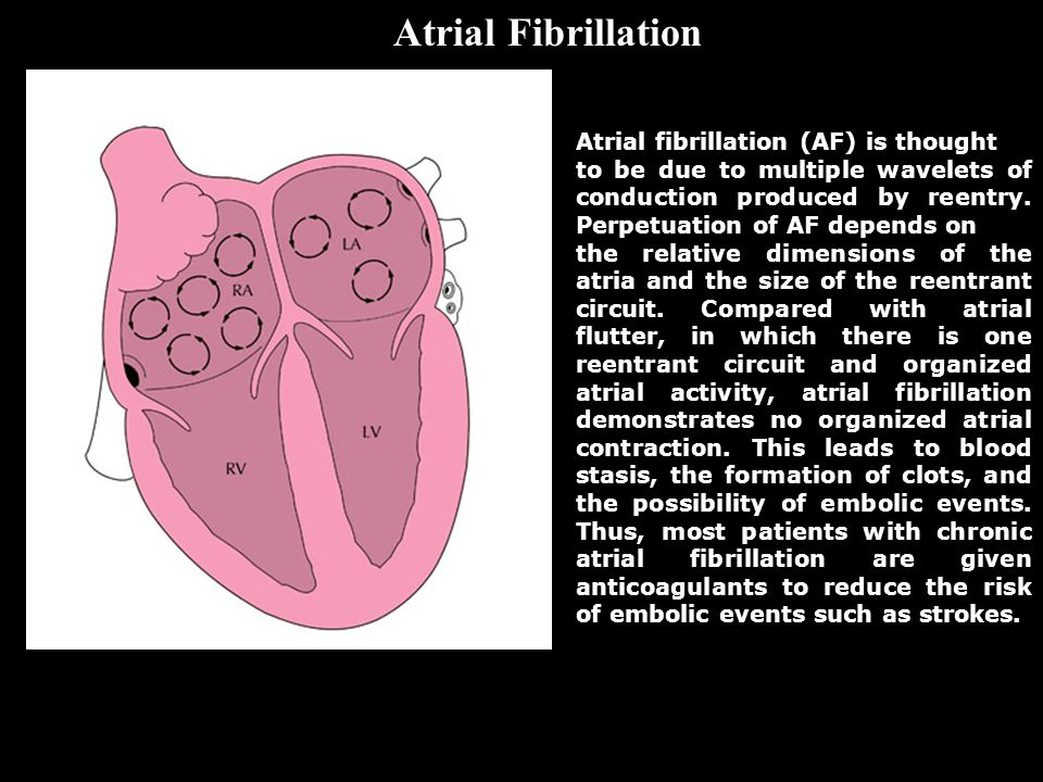 Atrial fibrillation (AF) is thought to be due to multiple wavelets of conduction produced by reentry. Perpetuation of AF depends on the relative dimen
