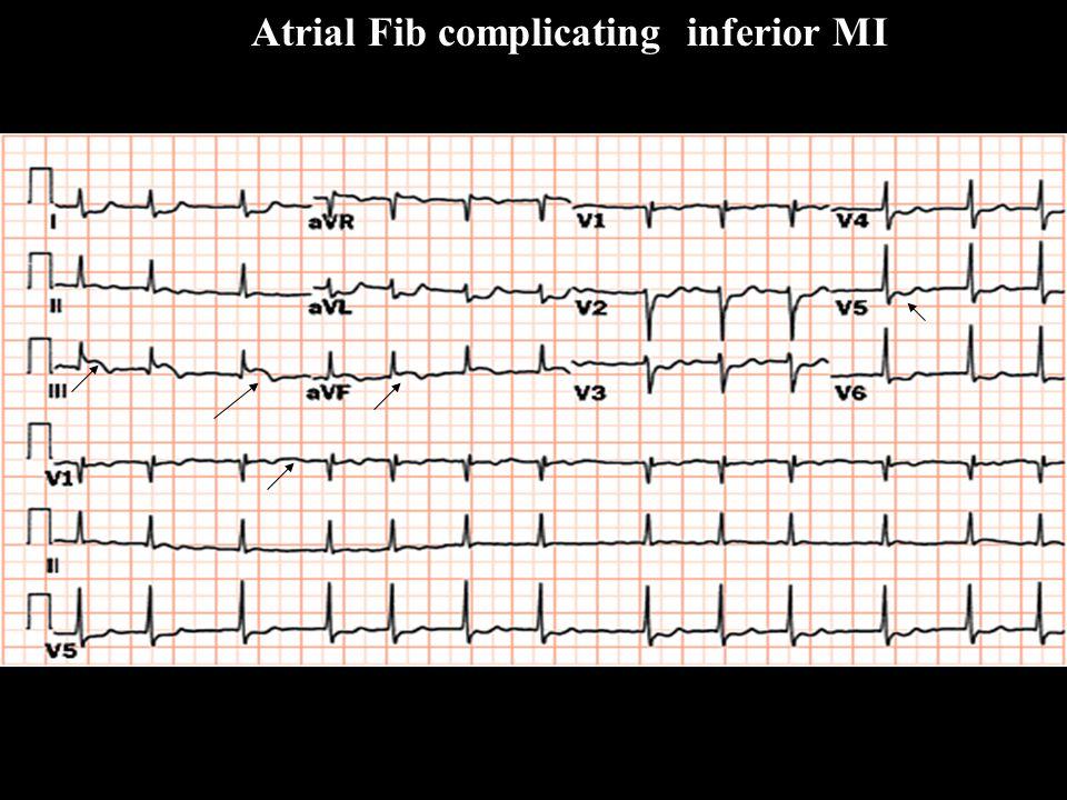 Atrial Fib complicating inferior MI A FibA Fib