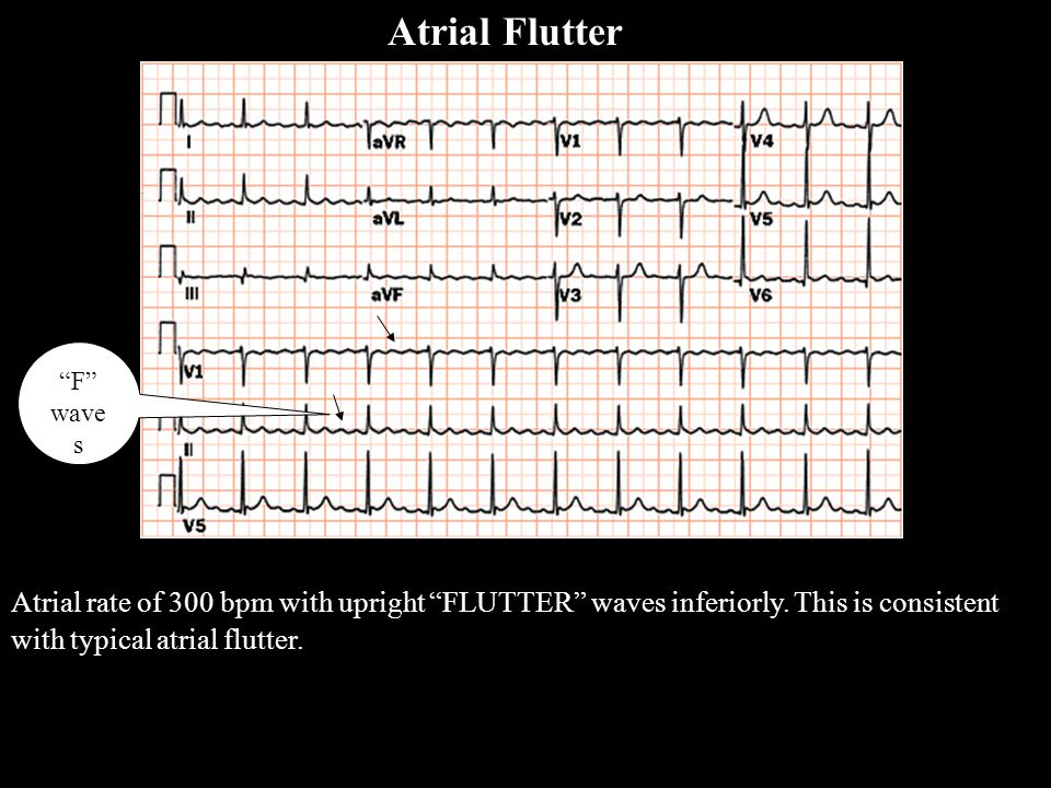"""Atrial rate of 300 bpm with upright """"FLUTTER"""" waves inferiorly. This is consistent with typical atrial flutter. Atrial Flutter """"F"""" wave s A FlutterA F"""