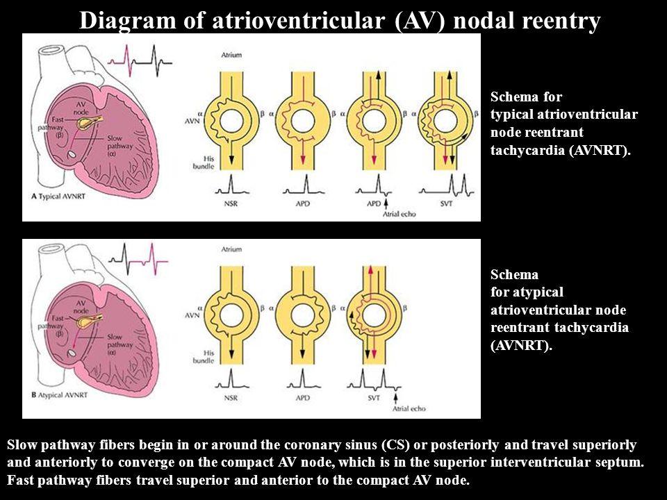 Diagram of atrioventricular (AV) nodal reentry Schema for typical atrioventricular node reentrant tachycardia (AVNRT). Schema for atypical atrioventri