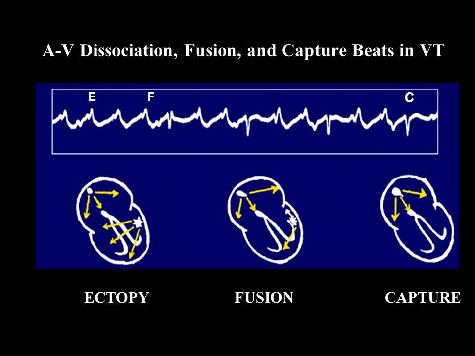 ECTOPY FUSIONCAPTURE C EF A-V Dissociation, Fusion, and Capture Beats in VT