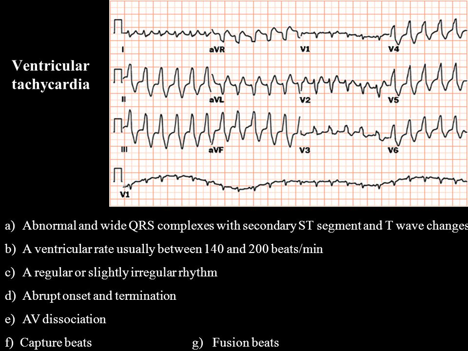 a)Abnormal and wide QRS complexes with secondary ST segment and T wave changes b)A ventricular rate usually between 140 and 200 beats/min c)A regular