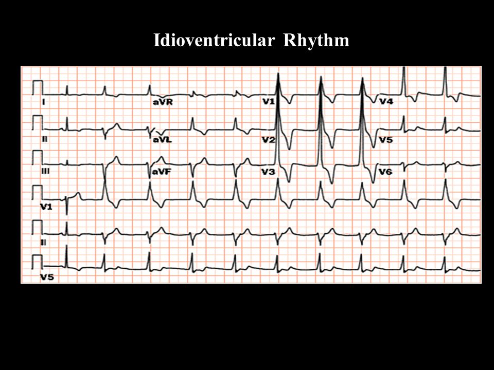 Idioventricular Rhythm