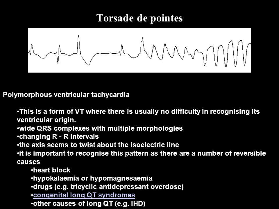 Polymorphous ventricular tachycardia This is a form of VT where there is usually no difficulty in recognising its ventricular origin. wide QRS complex