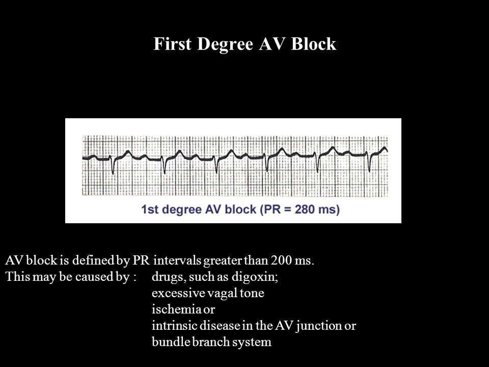 AV block is defined by PR intervals greater than 200 ms. This may be caused by :drugs, such as digoxin; excessive vagal tone ischemia or intrinsic dis