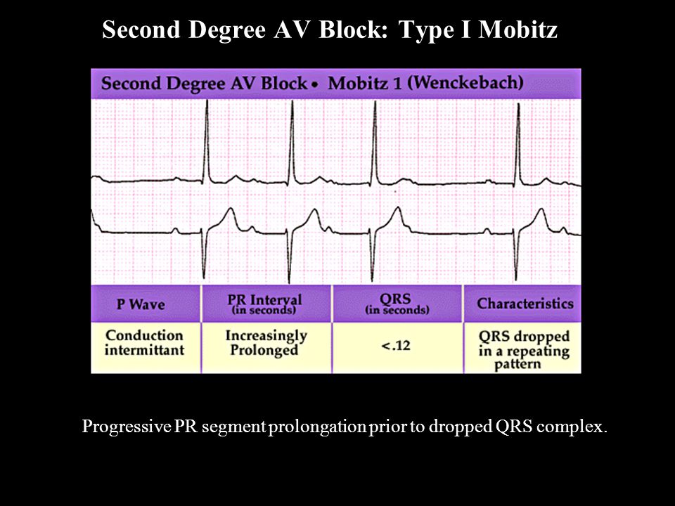 Progressive PR segment prolongation prior to dropped QRS complex. Second Degree AV Block: Type I Mobitz