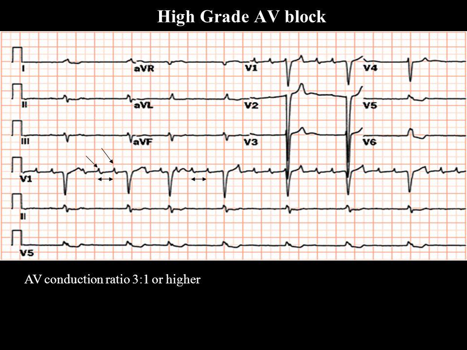 AV conduction ratio 3:1 or higher High Grade AV block