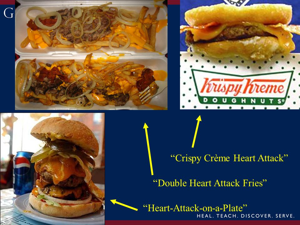 Heart-Attack-on-a-Plate Double Heart Attack Fries Crispy Crème Heart Attack