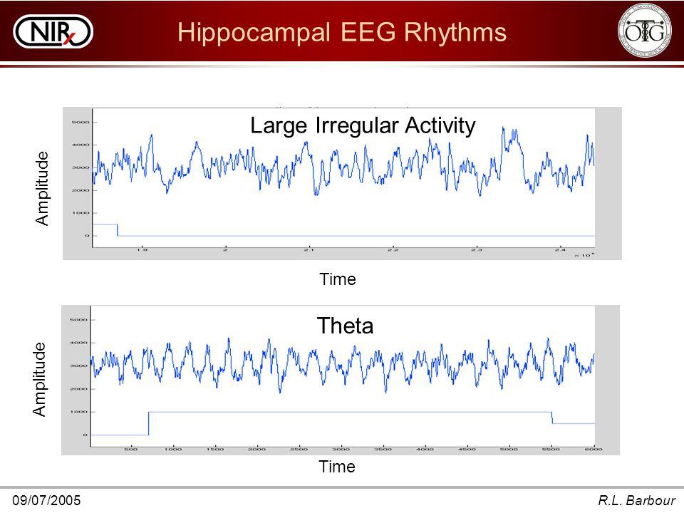 09/07/2005R.L. Barbour Hippocampal EEG Rhythms Theta Amplitude Time Large Irregular Activity