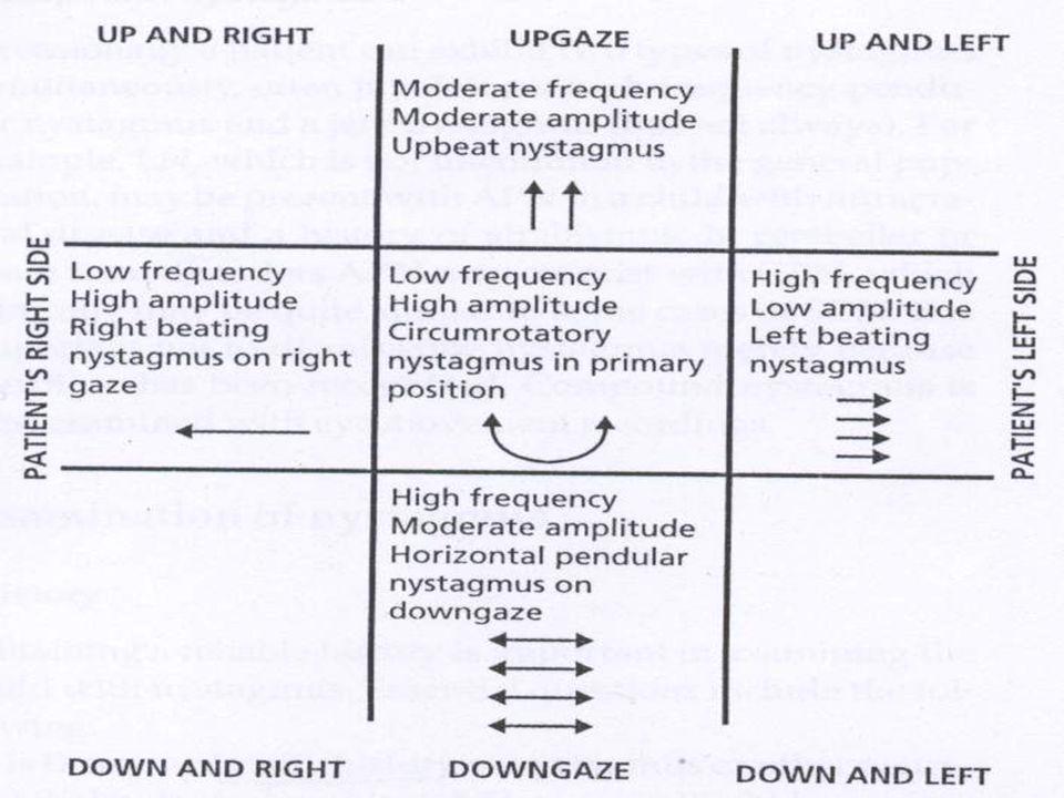 NEUROLOGICAL AND NEUROMUSCULAR NYSTAGMUS Acquired Pendular Nystagmus High frequency, Low frequency, Horizontal, Vertical, Circular, Elliptical, Unilateral, Bilateral Demyelinating, Oculopalatal myocolonus, Drugs, Glue stiffing, Late low vision, Neurodegeneratives, Chiasmal Glioma, Craniopharyngioma Head thrust Head thrust