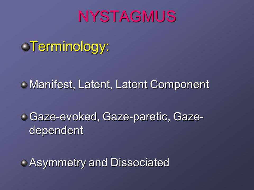 Down beaten and horizontal Nystagmus MS